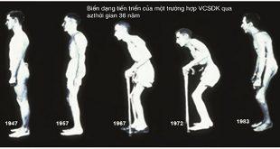 Biến chứng nguy hiểm của viêm cứng cột sống dính khớp ở nam giới
