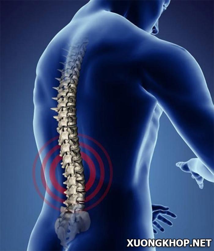 Nguyên nhân, triệu chứng và cách chữa thoái hóa đĩa đệm hiệu quả nhất 3