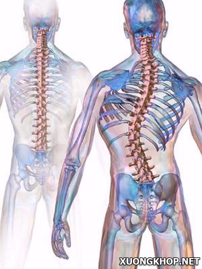 Nguyên nhân, triệu chứng và cách điều trị bệnh vôi hóa cột sống thắt lưng 1