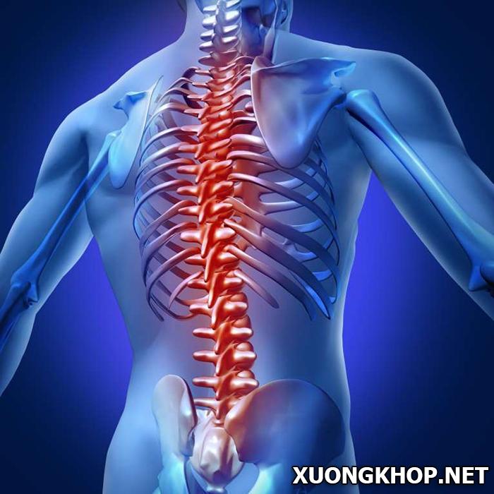 Nguyên nhân, triệu chứng và cách điều trị bệnh vôi hóa cột sống thắt lưng 2
