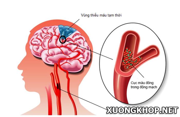 Bệnh vôi hóa cột sống cổ làm tăng nguy cơ thiếu máu não 2