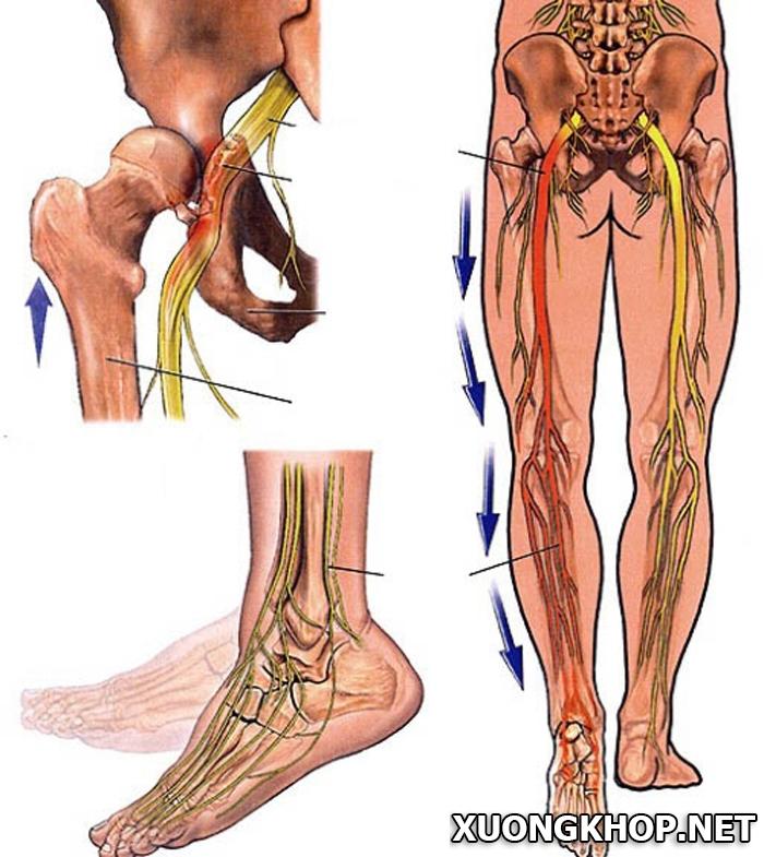 Nguyên nhân và cách điều trị đau dây thần kinh tọa 1