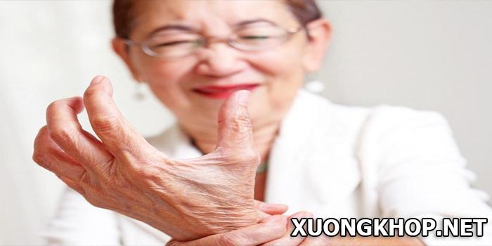 Bệnh gout ở nữ giới, tiến triển âm thầm nhưng mức độ nguy hiểm nghiêm trọng