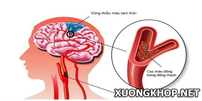 Bệnh vôi hóa cột sống cổ làm tăng nguy cơ thiếu máu não