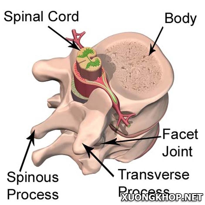Bệnh vôi hóa cột sống và cách điều trị bằng phương pháp cắt bảng sống 1