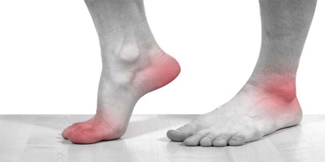 Bị bệnh gout uống thuốc gì? Một số bài thuốc chữa trị bệnh gout bằng Đông y phổ biến