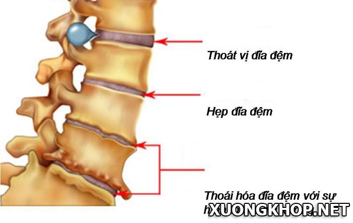 Phân biệt gai cột sống và thoát vị đĩa đệm. Cách chữa 2 bệnh này như thế nào? 1