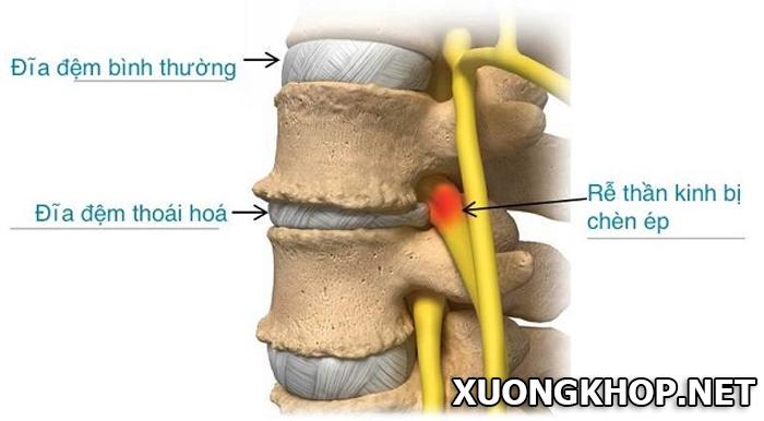 Đã tìm thấy phương pháp mới trong điều trị thoái hóa đĩa đệm cột sống 1