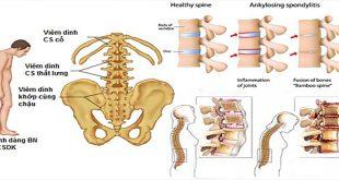 Những biến chứng nguy hiểm của bệnh viêm cột sống cứng khớp và cách điều trị tốt nhất