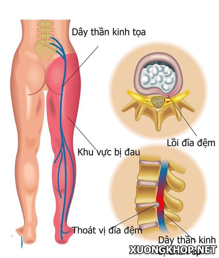 Thoái hóa cột sống thắt lưng bệnh học và cách điều trị hiệu quả nhất (P1) 3
