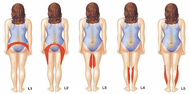 Triệu chứng bệnh thoái hóa cột sống thắt lưng và bài tập thể dục đúng cách hỗ trợ chữa bệnh