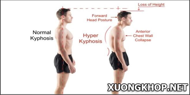 Viêm cứng khớp cột sống nguy hiểm như thế nào đến cơ quan khác cơ thể?