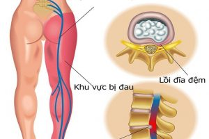 Nguyên nhân gây bệnh đau dây thần kinh tọa và phương pháp điều trị