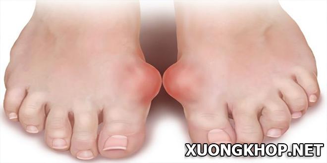 Viêm khớp bàn chân là gì? Nguyên nhân và biện pháp phòng ngừa bệnh