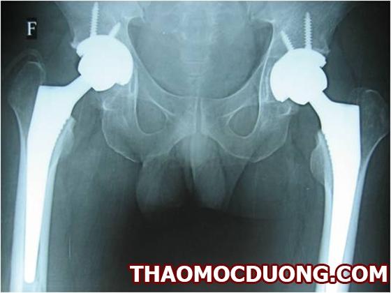 Bệnh hoại tử vô khuẩn chỏm xương đùi là gì và triệu chứng lâm sàng như thế nào 1