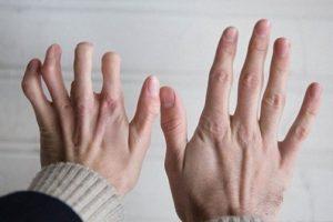 Bệnh viêm khớp dạng thấp có thể gây ra những biến chứng nguy hiểm nào