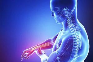 Bệnh viêm khớp dạng thấp – những lưu ý quan trọng khi mắc bệnh cần biết