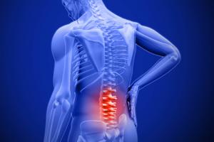 Căng thẳng quá mức tại nơi làm việc nguyên nhân của bệnh đau lưng