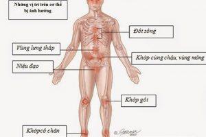 Chẩn đoán viêm khớp phản ứng và người bệnh nên lưu ý những điều gì?