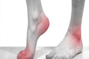 Dấu hiệu nhận biết bệnh viêm khớp dạng thấp - Bệnh lý và triệu chứng thường thấy