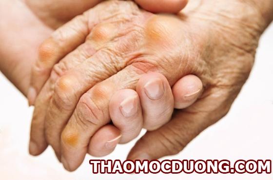 Dấu hiệu nhận biết triệu chứng và nguyên nhân gây nên bệnh gout 1