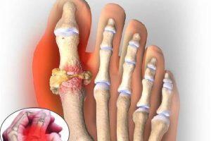 Dấu hiệu nhận biết triệu chứng và nguyên nhân gây nên bệnh gout
