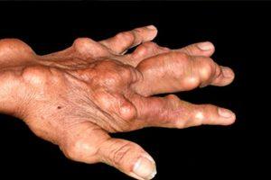 Đau khớp xưng khớp – dấu hiệu điển hình của bệnh gout giai đoạn đầu
