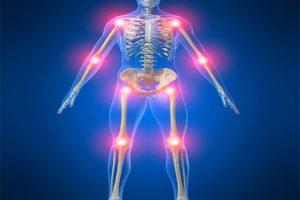 Đau nhức xương khớp – biểu hiện của các bệnh nguy hiểm