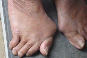 Giảm đau nhức và hạn chế biến chứng nặng nề của bệnh gout ( gút )