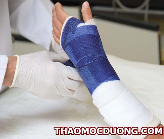 Giới thiệu về gãy xương, cách phân loại và chẩn đoán nặng nhẹ và hướng điều trị 1