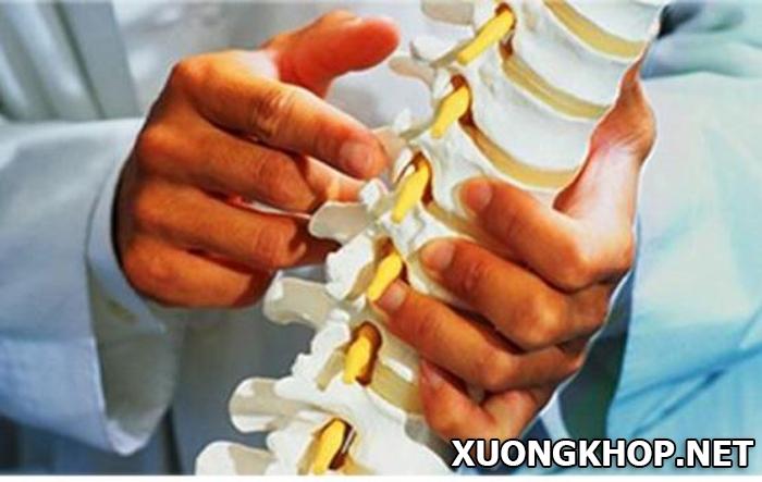 Hiểu rõ bệnh vôi hóa cột sống lưng là gì, áp dụng cách chữa trị đúng 1