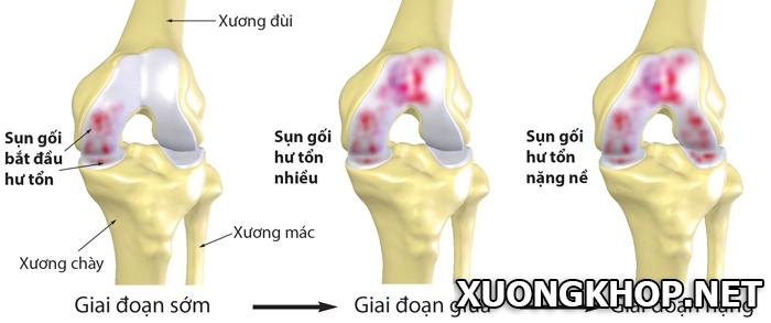 Hình ảnh X- quang thoái hóa khớp gối và dấu hiệu cơ bản