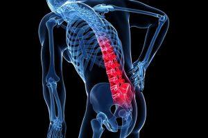 Khó khăn trong chẩn đoán, điều trị chấn thương cột sống đem lại kết quả tốt nhất cho người bệnh
