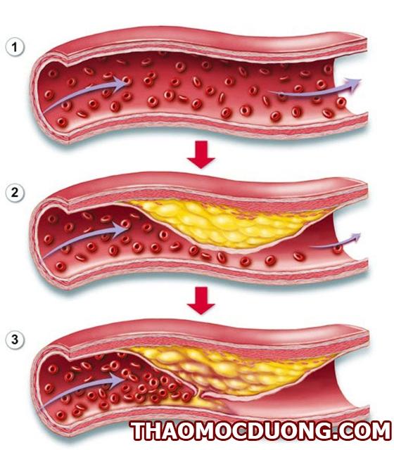 Lưu thông máu kém có phải là thủ phạm chính gây tê bì chân tay? 1