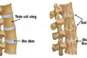 Nguyên nhân triệu chứng nhận biết và cách điều trị bệnh vôi hóa cột sống lưng