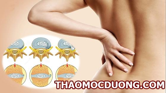 Phương pháp phát hiện sớm và điều trị bệnh thoái hóa đĩa đệm cột sống 1