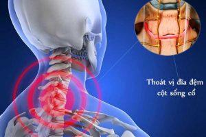 Phương pháp phát hiện sớm và điều trị bệnh thoái hóa đĩa đệm cột sống