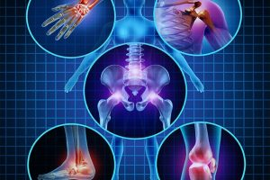 Tất cả thông tin về bệnh viêm khớp dạng thấp bạn cần biết để chữa trị phòng ngừa