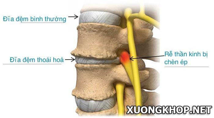 Thoái hóa đĩa đệm cột sống cổ và những hội chứng hay gặp 2