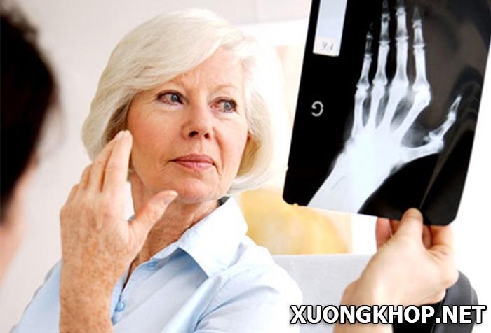 Thoái hóa khớp cổ tay nguyên nhân và lưu ý trong điều trị 2