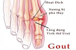 Thông tin cách chữa tổng quan về điều trị bệnh gout hiệu quả