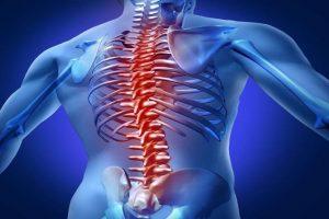 Tìm hiểu về bệnh vôi hóa cột sống lưng là gì phương pháp điều trị hiệu quả