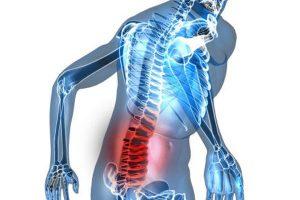 Toàn bộ thông tin về bệnh thoái hóa cột sống thắt lưng quan trọng nhất