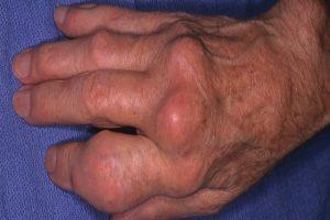 Tổng hợp các thắc mắc câu hỏi thường gặp về bệnh gout thông tin hữu ích