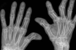 Tổng quan thông tin về bệnh viêm khớp dạng thấp và cách chữa trị