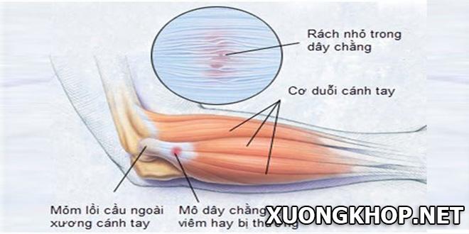 Tổng quan về bệnh thoái hóa khớp khuỷu tay