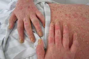 Viêm khớp vảy nến là gì và để lại những triệu chứng như thế nào