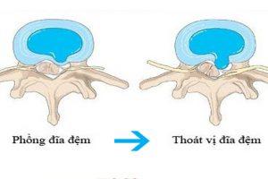 5 cách điều trị bệnh lồi phồng (thoát vị) đĩa đệm cột sống