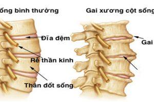 Bệnh gai cột sống thắt lưng, tổng quan thông tin cần biết