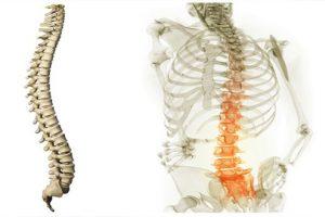Bệnh thoái hóa cột sống và cách điều trị phổ biến hiện nay